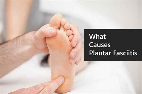 Planter Fasiitis by What Causes Plantar Fasciitis Plantar Fasciitis Causes