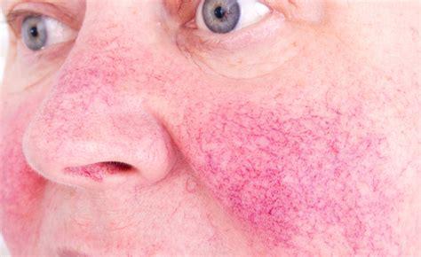 rosacea alimentazione cura per la rosacea in estate i rimedi pazienti it