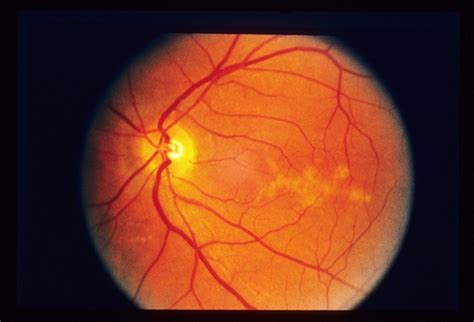 pattern dystrophy eye disease butterfly dystrophy retina image bank