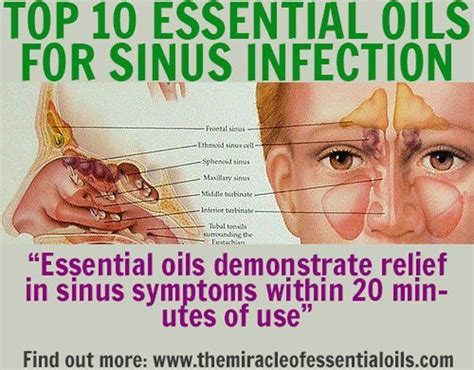 Sinus Efection Detox Symtom by 25 Best Ideas About Essential Oils Sinus On