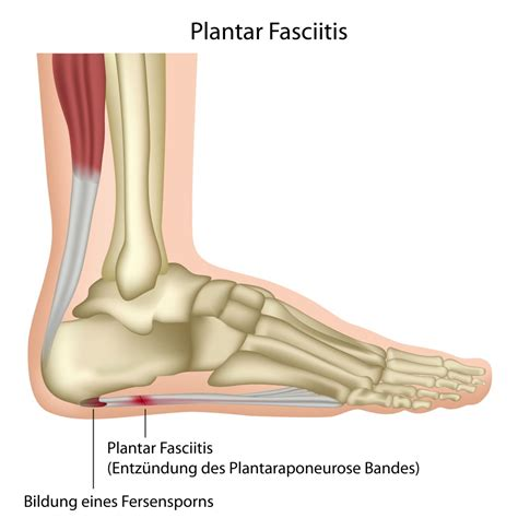 plantar faciitis remedies symptoms surgery for