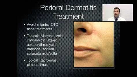 perioral dermatitis treatment onlinedermclinic