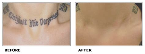 is laser tattoo removal safe is laser removal really safe the skiny