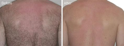 brazilian hair removal for men pictures full brazilian hair removal video