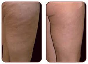 Miller Has Stretch Marks And Cellulite by Vasersmooth Cellulite Treatment Cellulite Removal Nyc