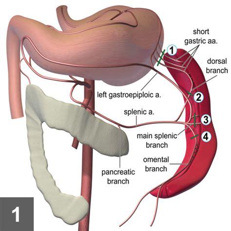 splenectomy in dogs total splenectomy clinician s brief