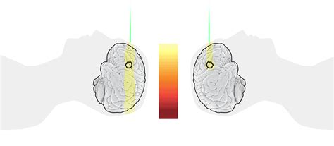 Pencil Beam Proton Therapy by How Proton Therapy Disrupts Cancer Washington Post