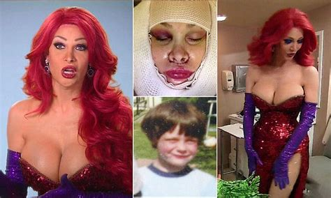 rabbit botched transgender cass spent 200 000 to look