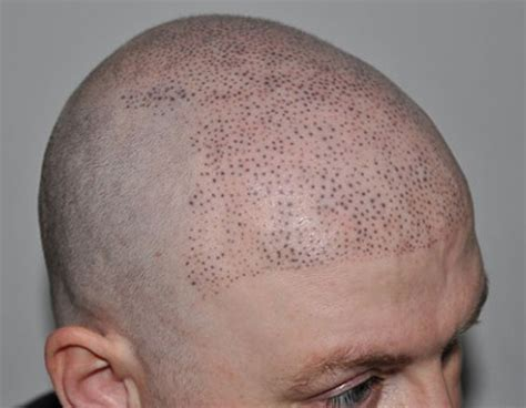 pics of scalp micropigmentation on with hair scalp pigmentation mht 174 the original and still the best