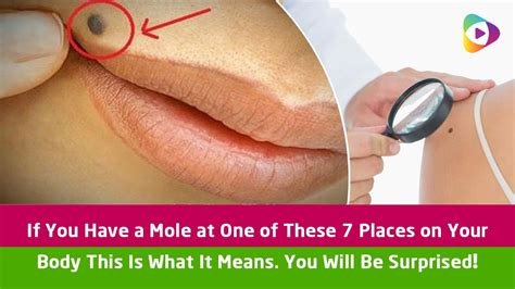 what does it mean if you have a big forehead if you have a mole at one of these 7 places on your body