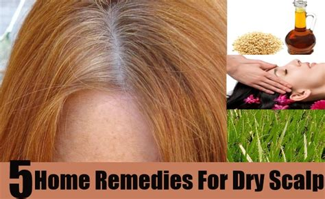 5 effective home remedies for scalp
