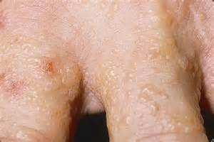 Eczema herpeticum symptoms pictures causes diagnosis treatment