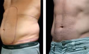 fettabsaugen vorher nachher bilder fettabsaugen fettabsaugung bilder vor und nach einem