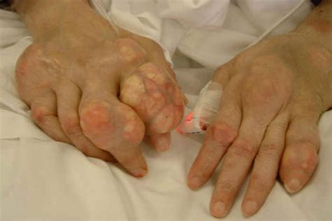 what are the symptoms of lyme disease in dogs gout and lyme disease joint and swelling are common symptoms