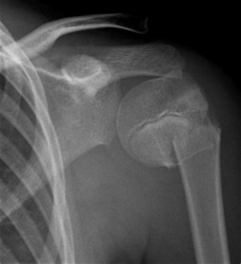 Clinical Practice Guidelines : Proximal humeral fractures ... Humeral Fx