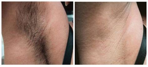 epi laser hair removal laser hair removal philadelphia about face skincare