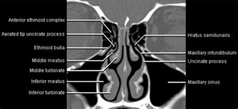 ostiomeatal unit pattern of sinus disease front