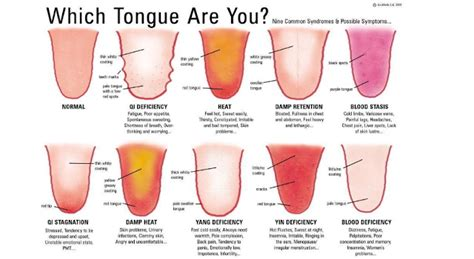 tongue color here is what your tongue telling you about your health