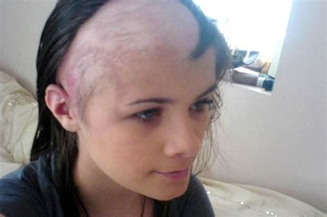 younger hair after brain surgery teenager couldn t walk talk or eat after brain tumour
