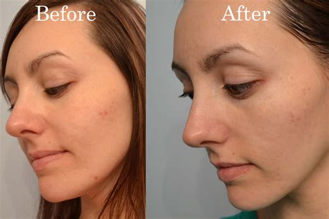 proactiv dark spot corrector before and after a love affair with eyeliner kiehl s dark spot corrector