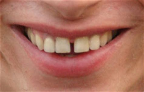 gap teeth 180 degree health