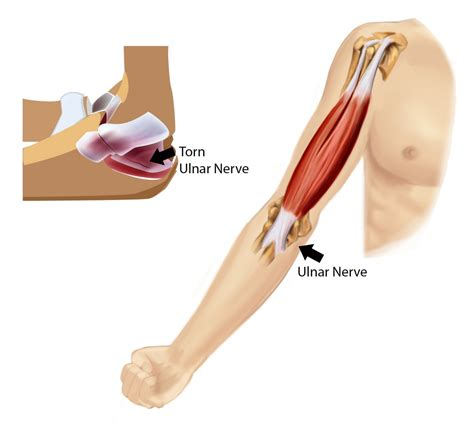 hitting nerve in elbow ulnar collateral ligament injury ucl pt me