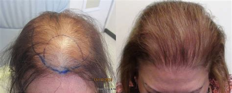 hair plantation hair style for woman women s hair transplant before and after pictures