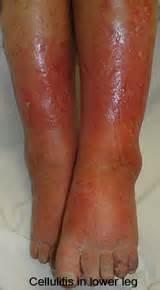 Cellulitis of the legs http www ecellulitis com cellulitis types leg