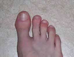 douleurs aux ongles d orteils les douleurs aux ongles d
