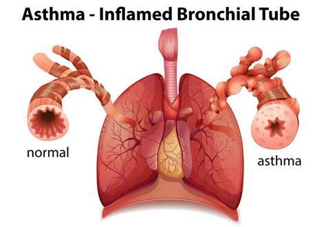 menyembuhkan asma dengan obat herbal hpai herbalismart