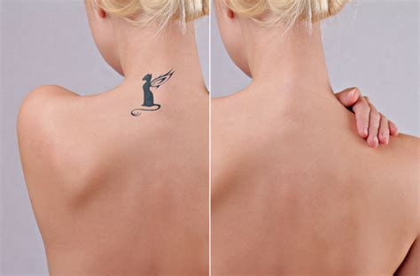 process of tattoo removal 4 ways to beat your during laser removal