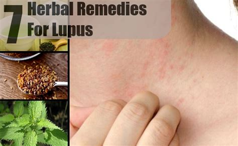 7 amazing herbal remedies for lupus how to treat lupus