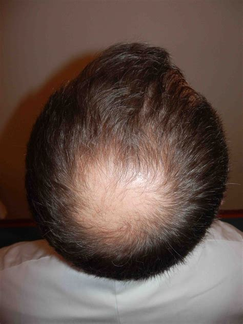what cause prople bald in crown looking old for your age cardioexchange cardioexchange