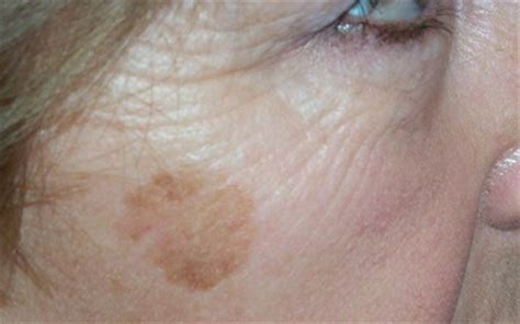 light spots on my face what are brown age spots all your questions answered