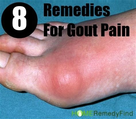 8 home remedies for gout to get relief from diy