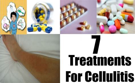 7 treatments for cellulitis how to treat cellulitis