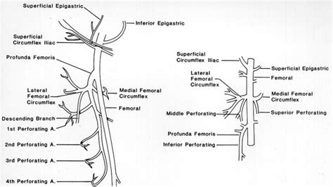 diagram of femoral artery image of femoral and profunda femoris arteries