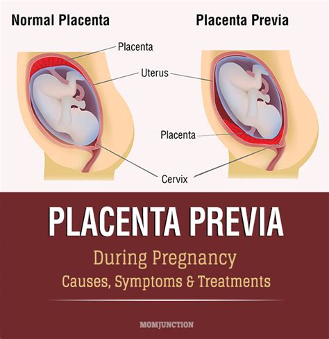 placenta previa bed rest placenta previa during pregnancy causes symptoms amp treatments you pets world
