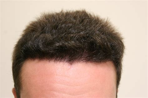 prescreened hair transplant physicians hair transplant month by month hairstylegalleries com