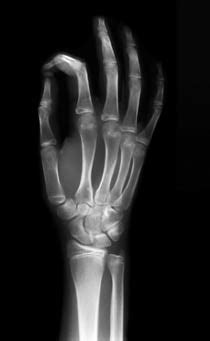 Radiography Blog   All Things Radiography