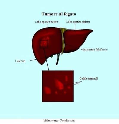 il fegato porta dolore tumore al fegato sintomi e cause benigno emangioma cancro