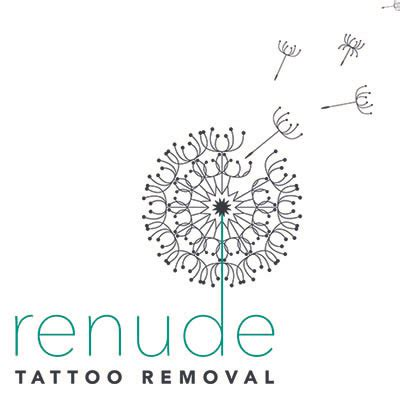 laser tattoo removal review renude laser removal review ratings information