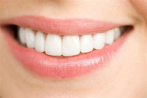 Veneer Pemutih Gigi by Dijamin Kamu Pasti Belum Tahu 7 Fakta Veneer Gigi Ini
