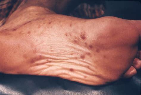 syphilis rash on hands syphilis rising quiz