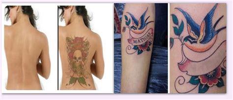 tattoo removal durban pmb laser clinic pietermaritzburg projects photos