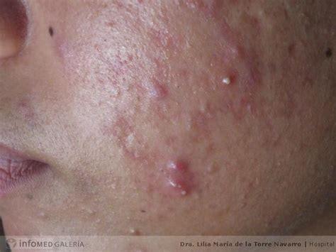 en la piel de 8499925197 p 193 pula binipatia e higienismo