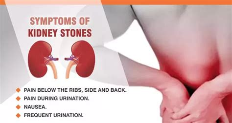 the kidney stone symptoms in women how to treat kidney stones quora