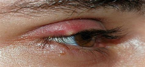 Obat Mata Bintitan Anak lensa kontak bisa sebabkan mata bintitan dokter sehat