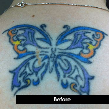 skin renew laser tattoo removal skin renew butterfly removal indy skin renew