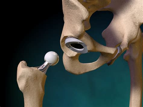 hip replacement promising new hip replacement surgery modern senior